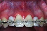 Ridge aumentation case before image at Edward I. Jutkowitz, D.M.D., P.C. - Periodontics and Implantology