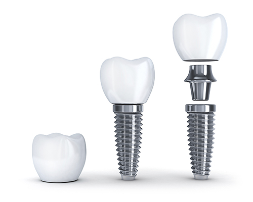 A model of dental implant materials with titanium post with tooth at Edward I. Jutkowitz, D.M.D., P.C. - Periodontics and Implantology
