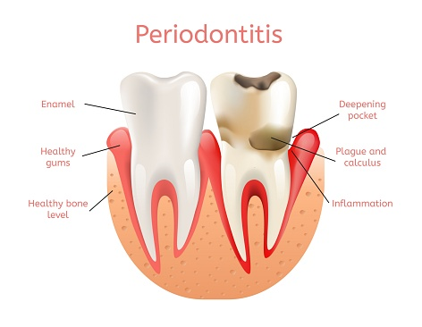 Diagram of a healthy tooth with a tooth affected by periodontal decay at Edward I. Jutkowitz, D.M.D., P.C. - Periodontics and Implantology