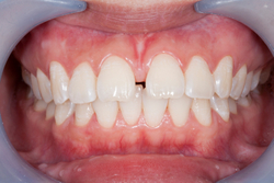 Teeth with example of frenum too large to allow the teeth to come together at Edward I. Jutkowitz, D.M.D., P.C. - Periodontics and Implantology