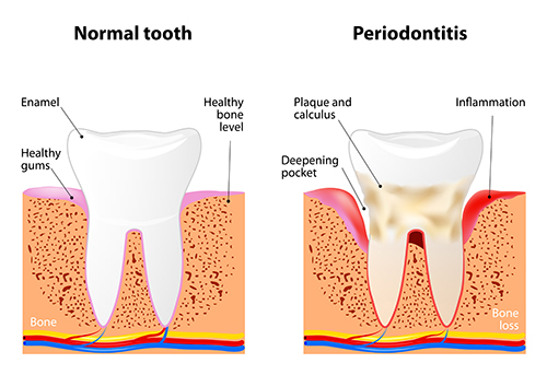 Illustration of a tooth with periodontal disease, in need of scaling and root planing, at dentist office in Roslyn Heights, NY.